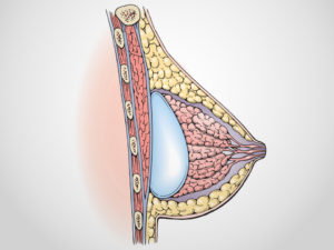 Breast Augmentation Surgery - Subglandular placement with breast implant