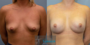 Tuberous Breast Correction - 1578