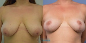 Breast Lift - 20