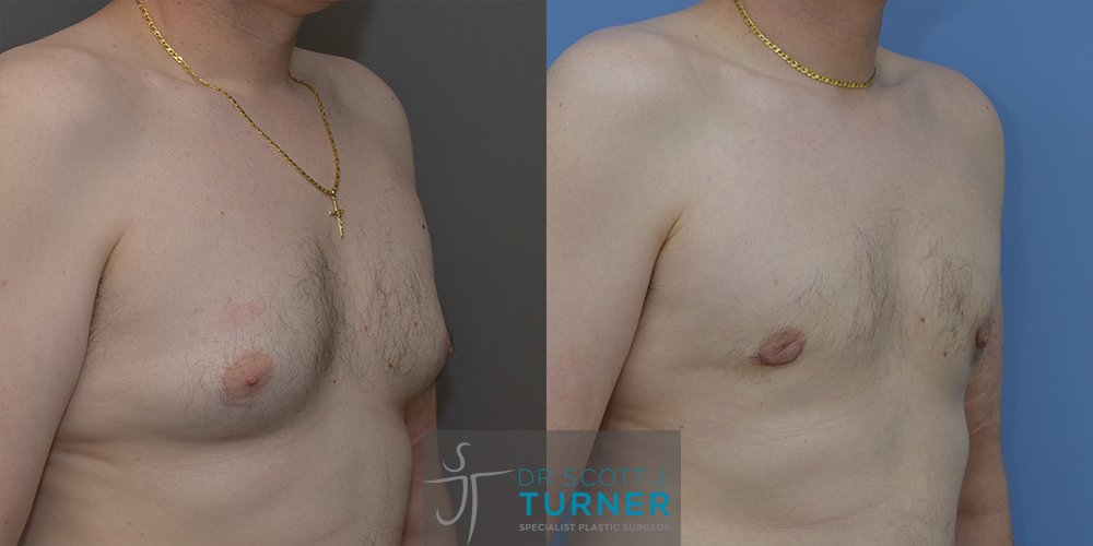 Bilateral gynaecomastia with gland excision and liposuction to chest wall