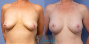 Breast Lift with Implants - 1725